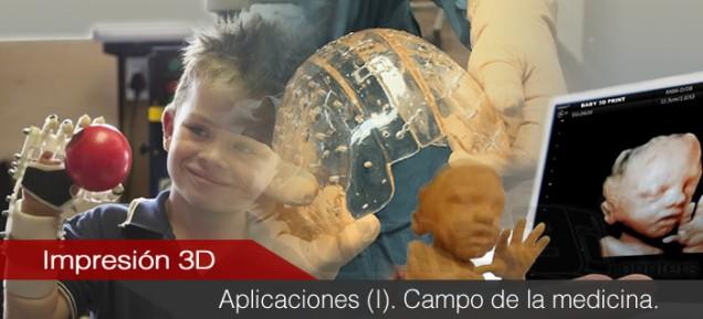 Aplicaciones de la impresión 3D (I). Medicina.